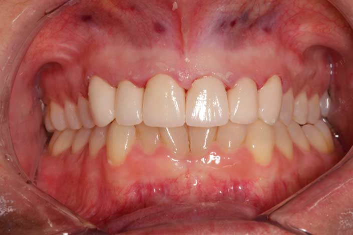 Anterior Crowns and Crown Lengthening